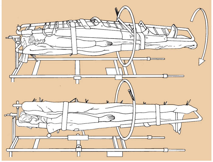 Drawing of a Stryker Frame