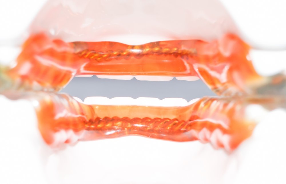 Picture 6: The rear view of the device further illustrates a truly open anterior. We make sure to keep the lingual areas of the devices as thin as possible, allowing for maximum tongue space and comfort.  Please note the orange shading is for illustration purposes only. All devices are made in clear acrylic.