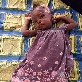 - An abandoned child was brought to Ministry of Mercy by police.  She was brought into the Medical Center soon after arrival with anemia, swelling, malnourished and a chest infection.  With an aggressive two week treatment, she improved and was discharged by to M.o.M.  She will continue to receive follow up care at the out-patient clinic.