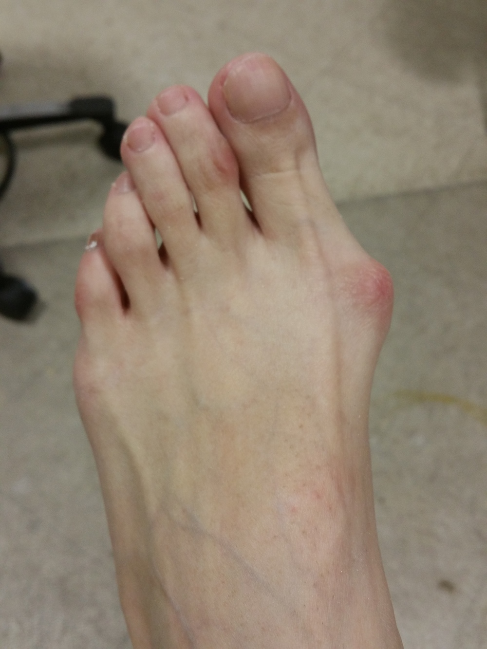 Bunions United Foot Amp Ankle Surgeons