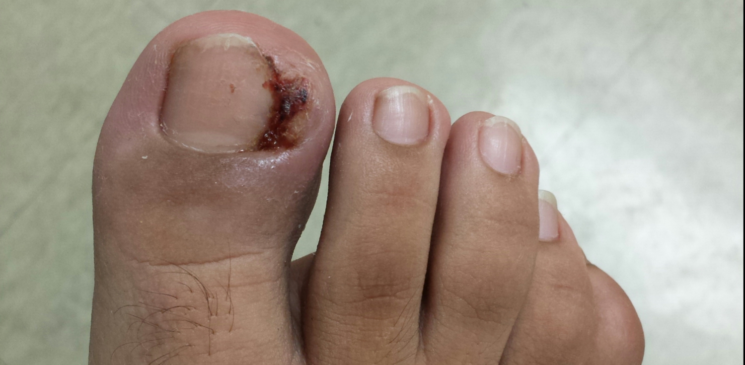 Ingrown Toenail — United Foot & Ankle Surgeons