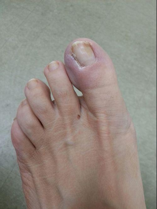 Ingrown Toenail — United Foot & Ankle Surgeons