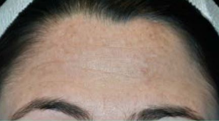 Perf 10 after intermediate peel 1.JPG