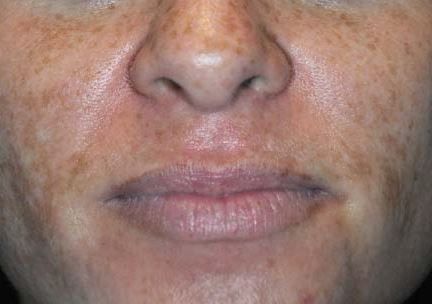 Perf 10 intermediate peel and home care regimen before.JPG