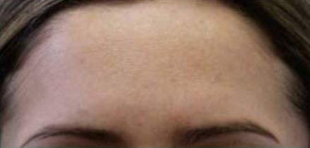 Perf 10 intermediate peel After.JPG
