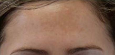 Perf 10 intermediate peel before.JPG