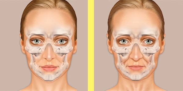What the bones of your face look like at 35 (left) and 45 (right)