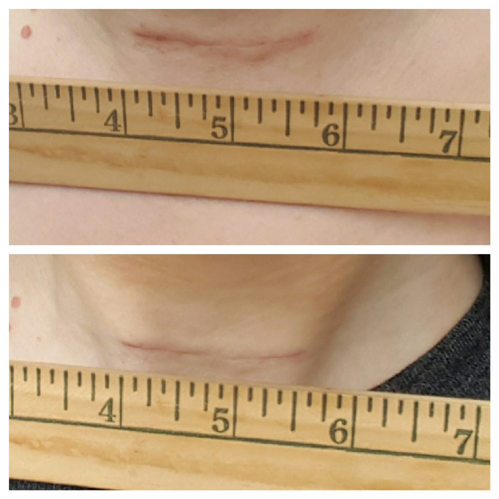 Here's my progress after 7 days of SCARFADE--top is day 1 and bottom is day 7!!!