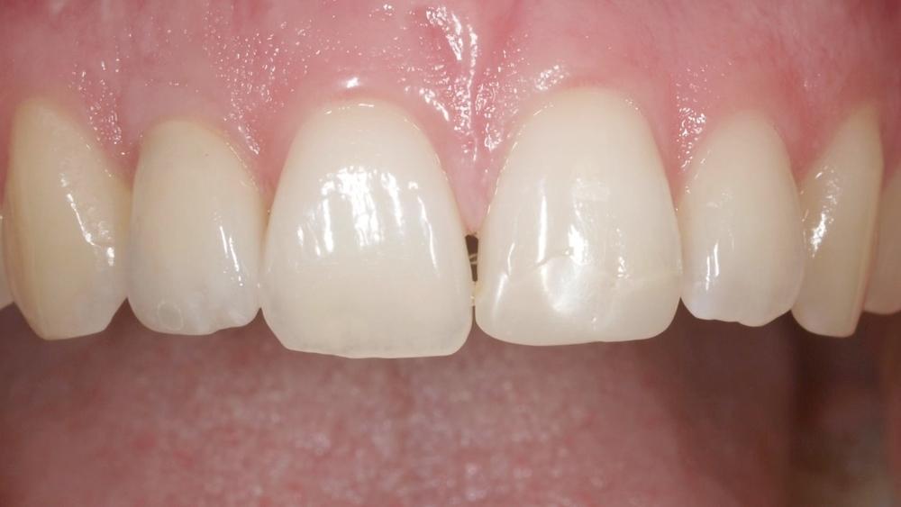 Eingesetzte Implantatkrone