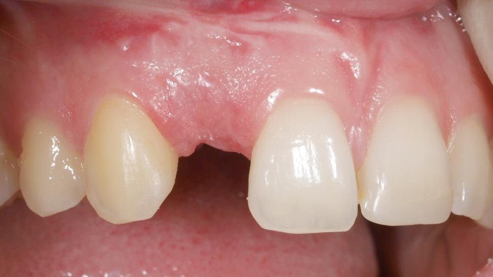 Zahnlücke - Implantat bereits gesetzt