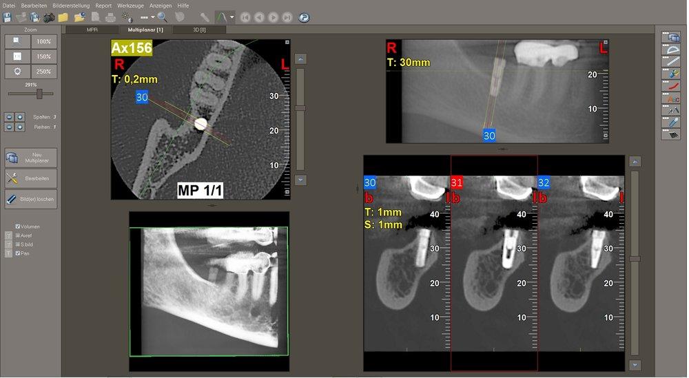 Aufgrund der gewonnenen Erkenntnisse konnte risikoarm und erfolgreich in das vorhandene Knochenangebot implantiert werden. Ohne eine 3-D-Abklärung hätte man vermutlich ein zu langes Implantat mit falscher Angulierung und anschließender Perforation des Unterkieferknochens geplant und ggf. eingepflanzt.
