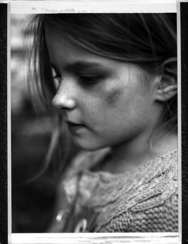 Deborah Parkin - bruised cheek.jpg
