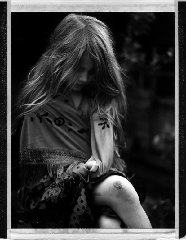 Deborah Parkin - cut knee.jpg