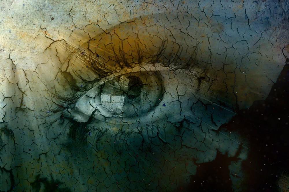 dryeye-sm.jpg