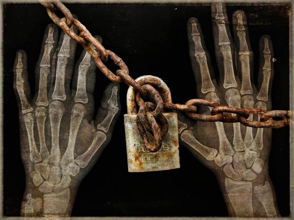 lock chain xray.jpg
