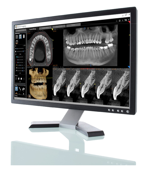 CS 8100 CBCT 3D System by Carestream Dental
