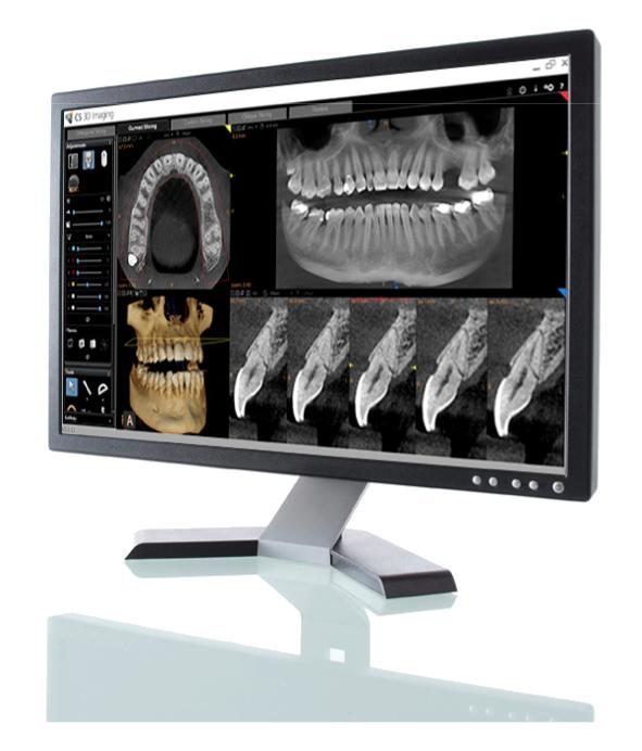 CS 8100 CBCT 3D System by Carestream Dental