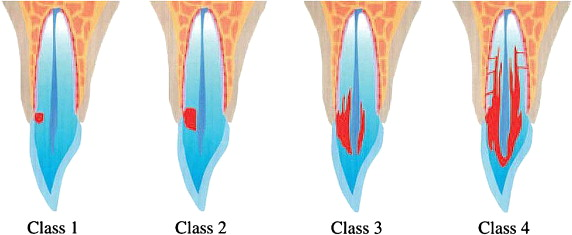 "Heithersay, Geoffrey S. ""Invasive cervical resorption: an analysis of potential predisposing factors."" Quintessence International 30.2 (1999)."