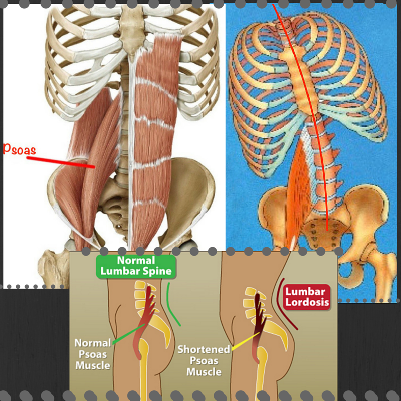 Top left: Normal psoas anatomy. Top right: one psoas muscle tightened, creating postural tilt. Lower middle: both psoas muscles tighten creating anterior pelvic tilt.