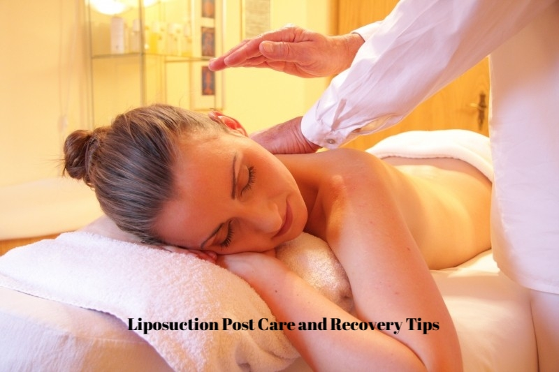 Liposuction Post Care And Recovery Tips Cleverly Catheryn
