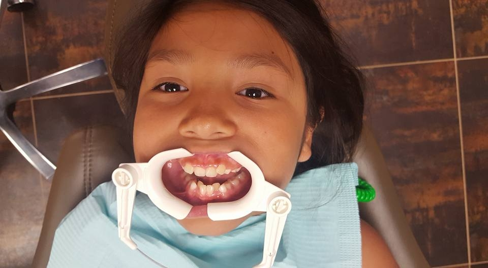 Open wide, getting ready to have her Damen Braces installed and start her journey to a more beautiful smile!