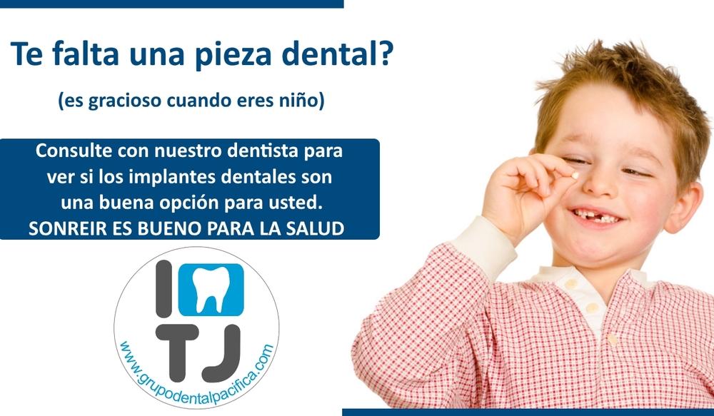 I love TJ Dentista Tijuana Precio de Implantes - grupodentalpacifica.com