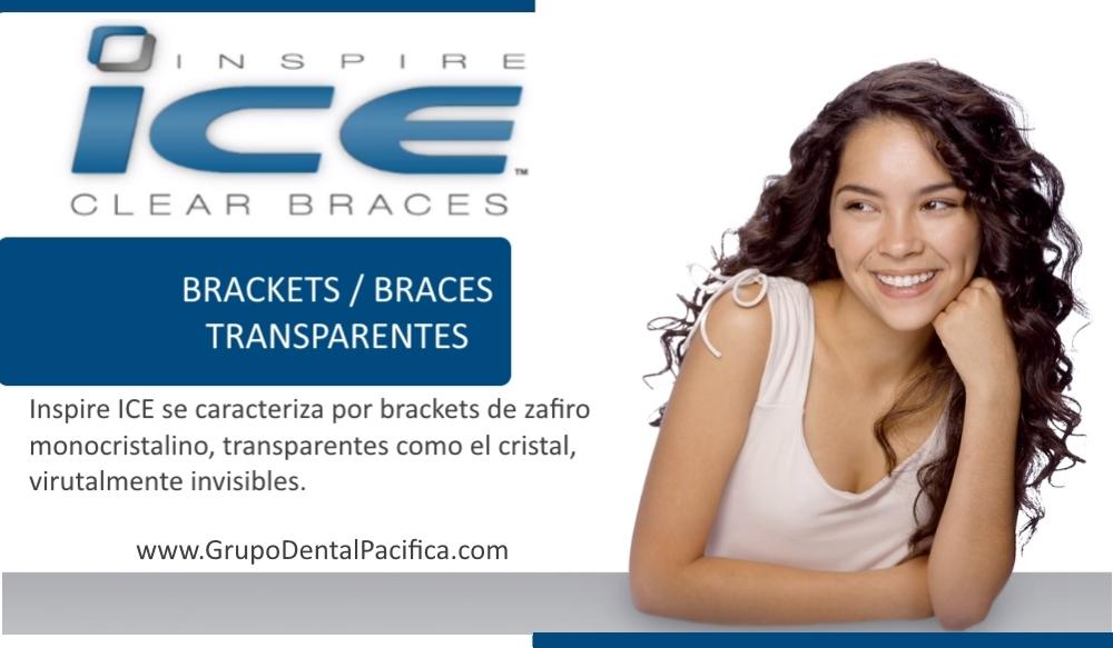 Braces_Brackets_Precios_Tijuana_Clinica_Dental.jpg
