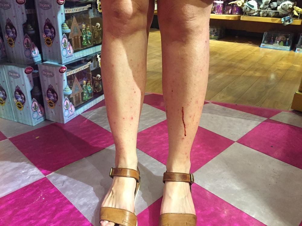 Eczema_Bleeding.jpg