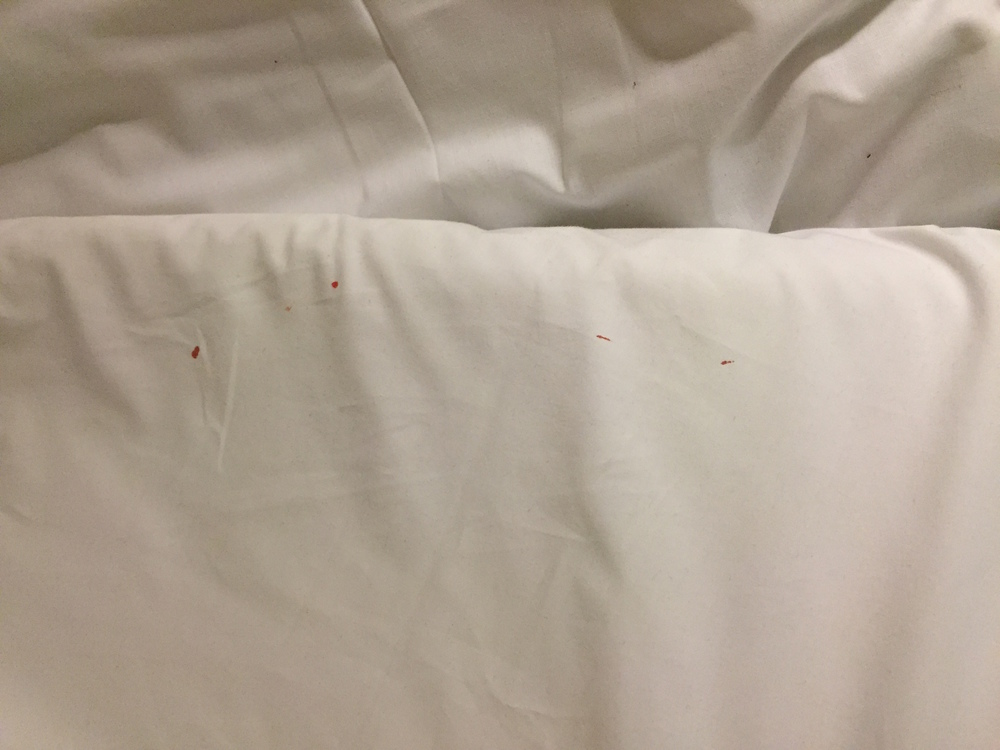 Eczema_Bleeding-white_sheets.jpg