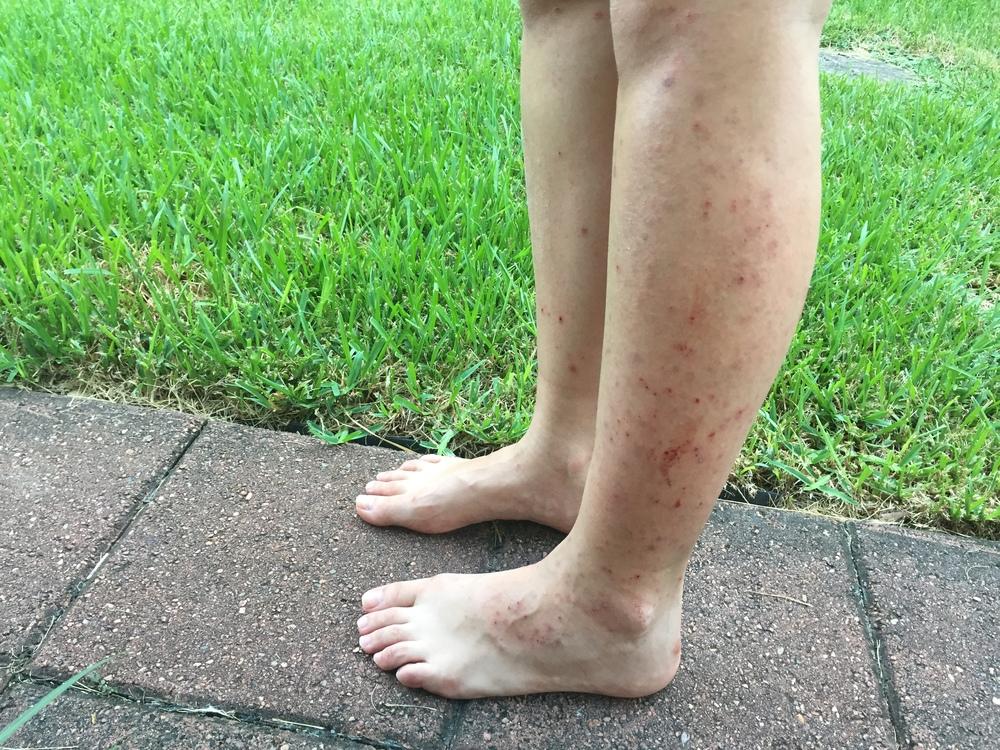Eczema_Legs.jpg