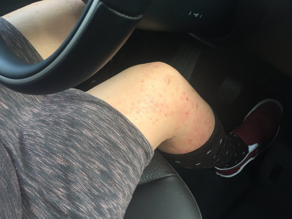 driving_while_itchy-eczema.jpg