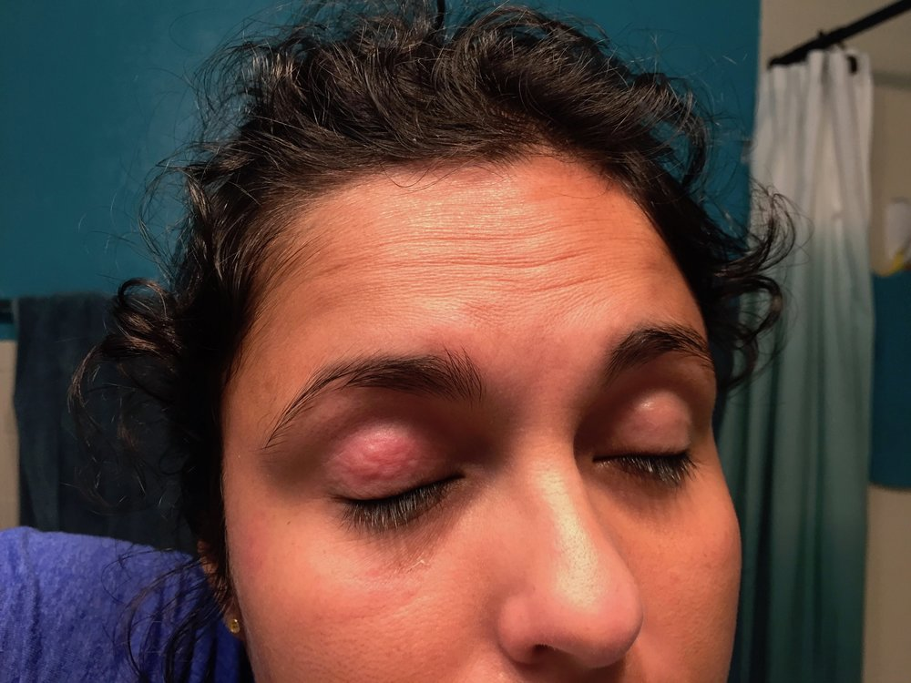 eyelid_eczema.jpg