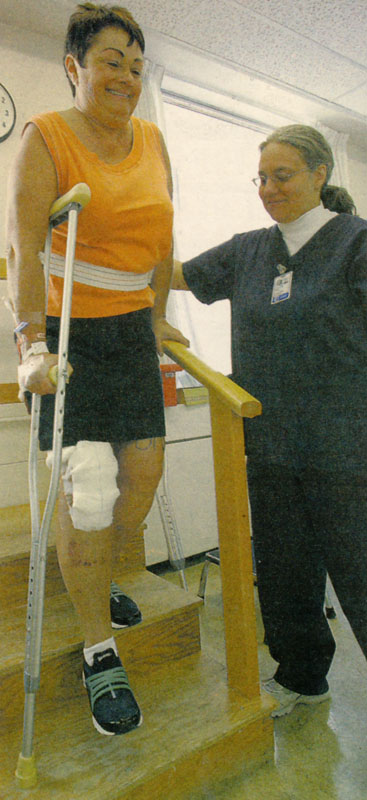 knee surgery 4w.jpg