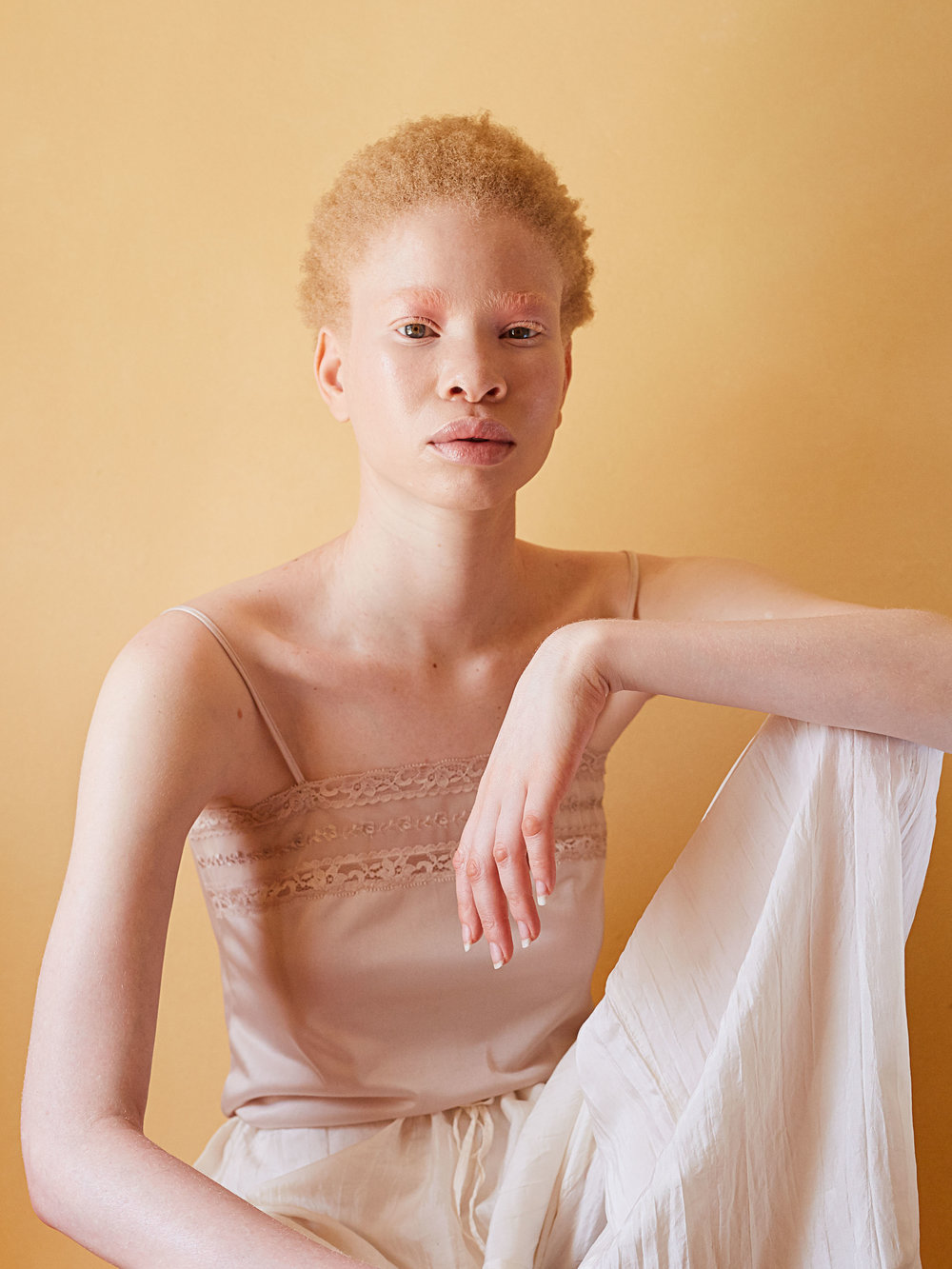 African Albino Beauty Editorial -6.jpg