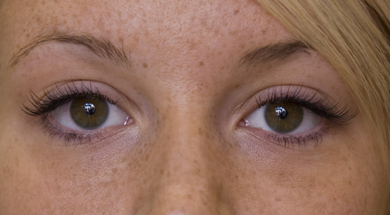 After Lash Extensions