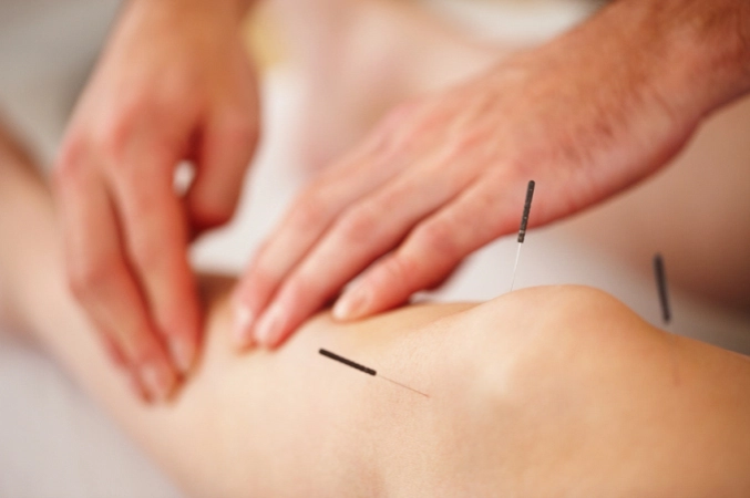 Acupuncture_1.png