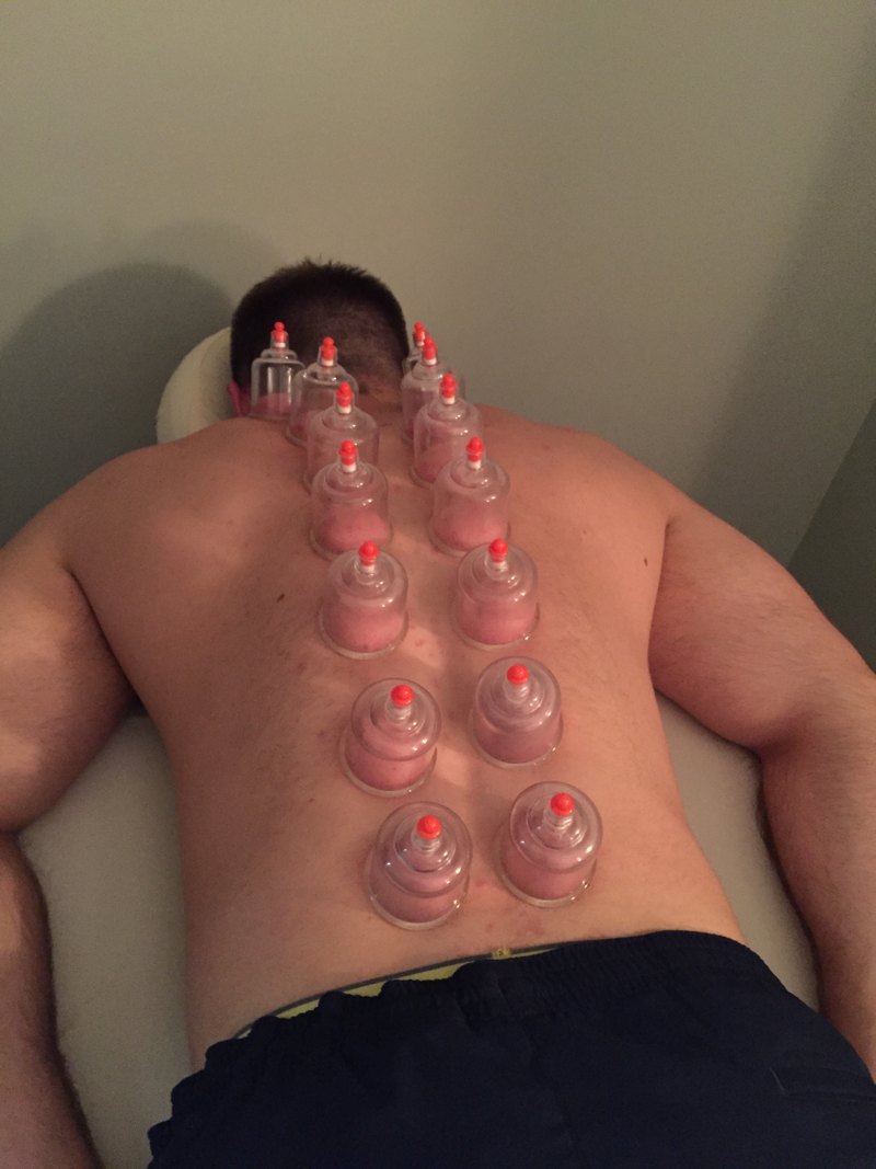 Cupping_1.png