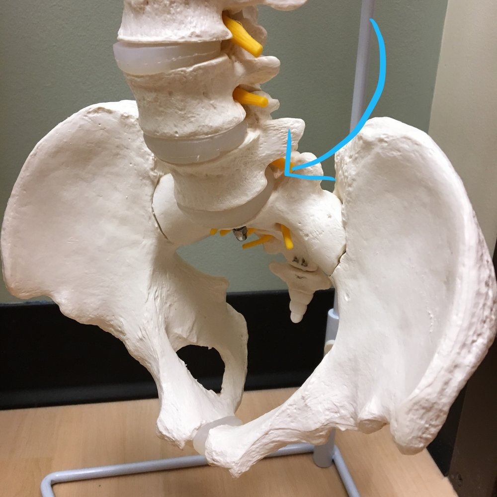 Spine model from my doctor's office, showing the offending disc