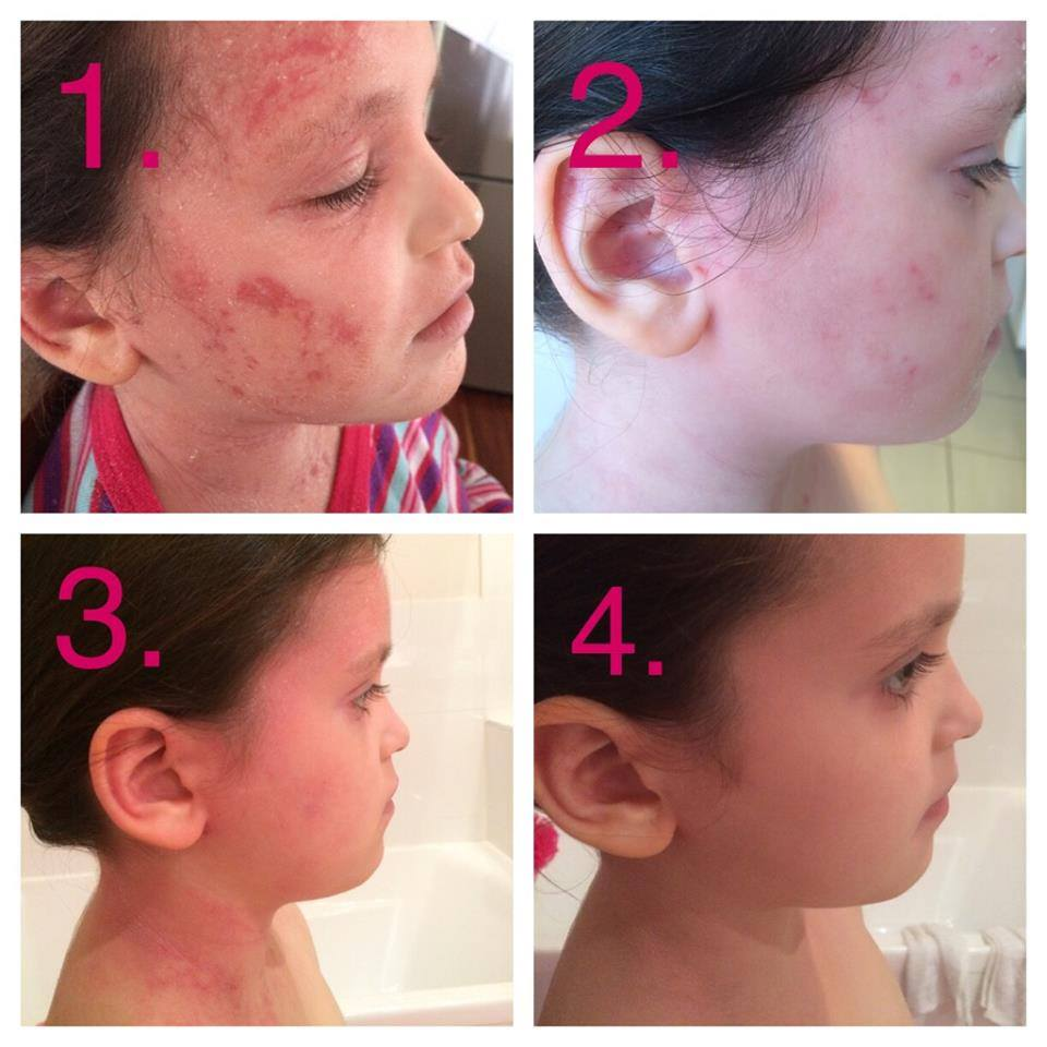 Results seen using Dr. Aron's Eczema Protocol.
