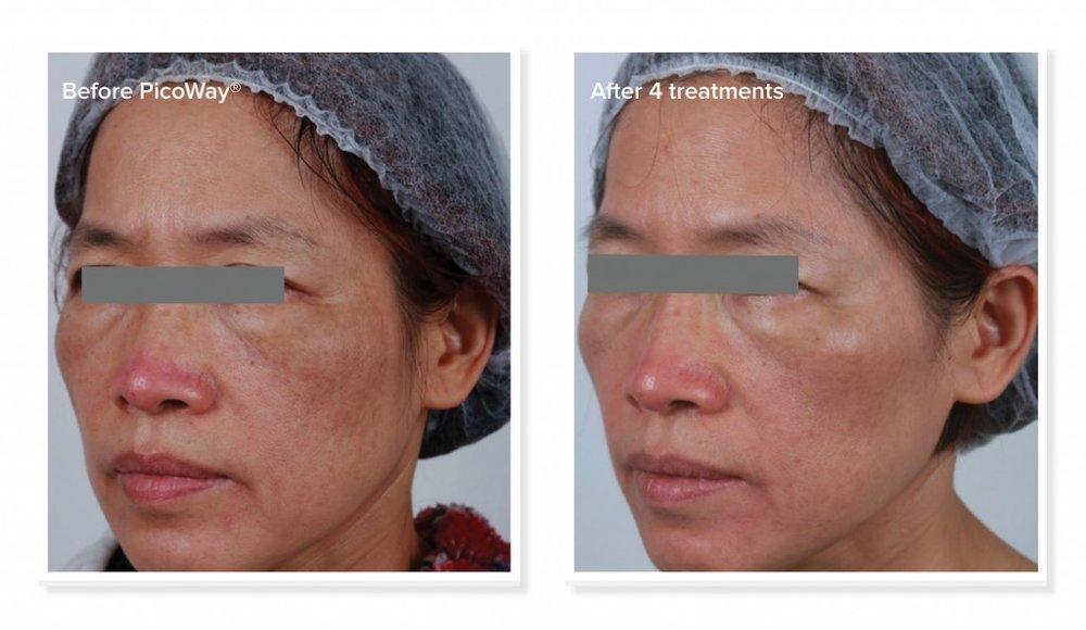 Project-Skin-MD_PicoWay_05-1024x594.jpg