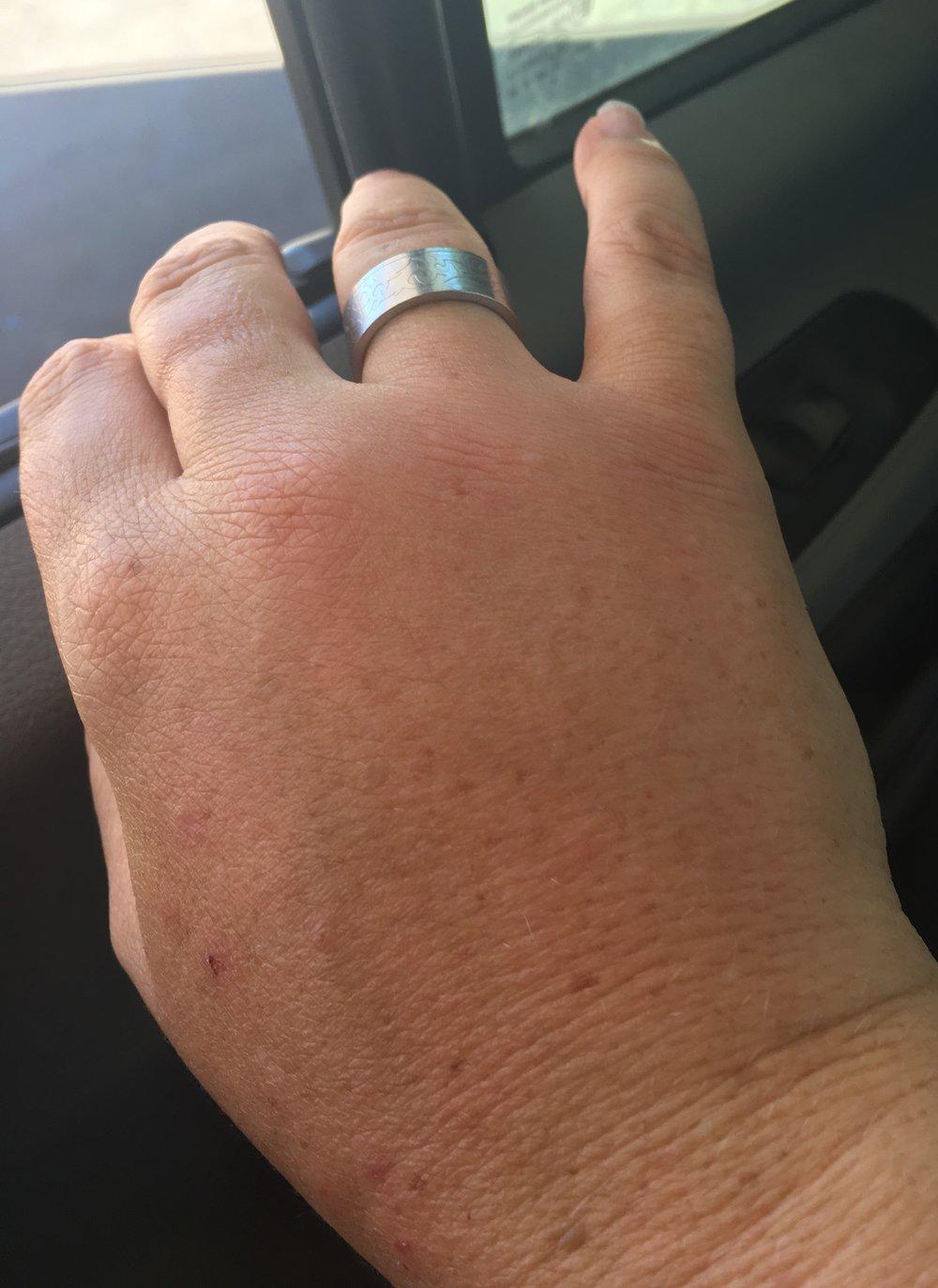 Fat hand!
