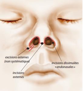 Complexé(e) par votre nez ? Découvrez les explications du Dr Franchi pour une chirurgie esthétique du nez (rhinoplastie).