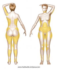 Optez pour une liposuccion douce pour améliorer votre silhouette.