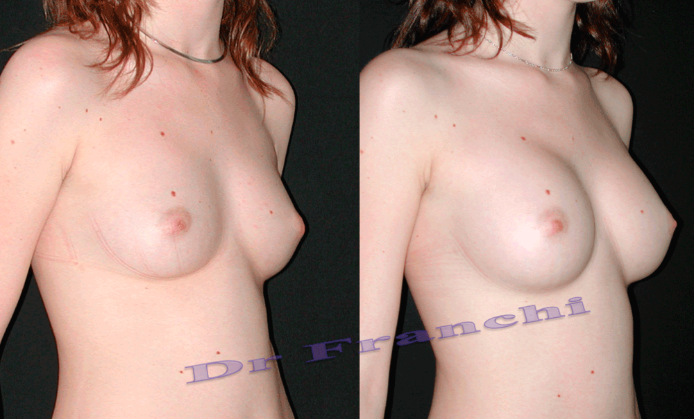 augmentation-mammaire-par-implants-4.png