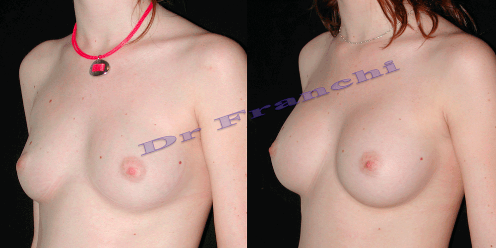 augmentation-mammaire-par-implants-6.png