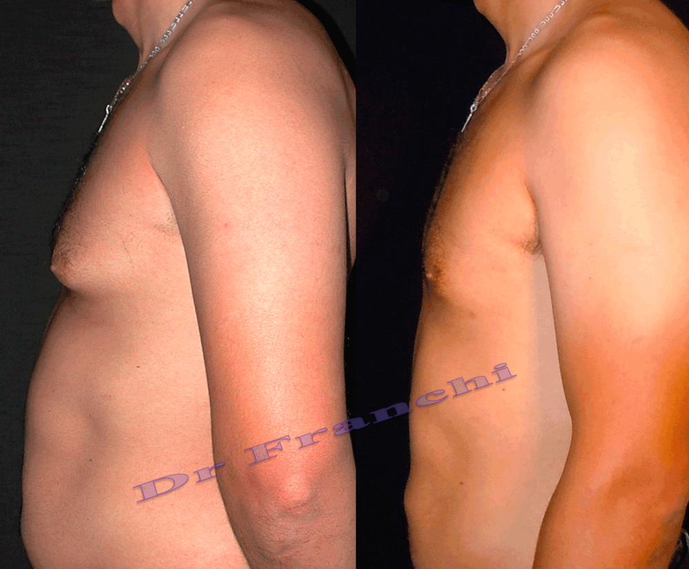 lipoaspiration-du-ventre-de-l'homme-2.png