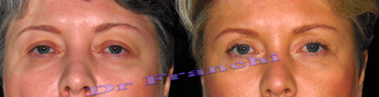 photos-avant-apres-blepharoplastie.png
