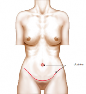 cicatrices-abdominoplastie.png
