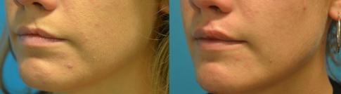 Fente labiale opérée dans l'enfance. Avant et après (photographie de droite) à 3 mois après injections d'acide hyaluronique réticulé.