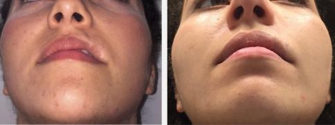 Séquelle d'hémangiome labial supérieur gauche. Avant et après (photo de droite) à 3 mois après injections d'acide hyaluronique réticulé.